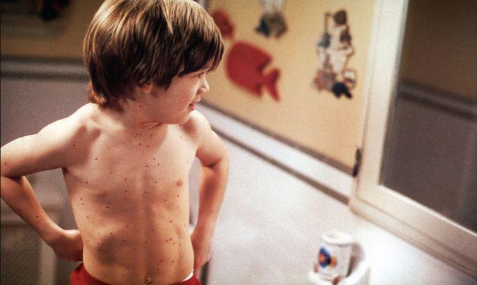 Запоследнюю неделю вЗапорожской области вирусной инфекцией заболели 6 человек