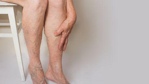 Veenilaienditest võivad välja kujuneda koledad ja raskesti ravitavad haavandid.