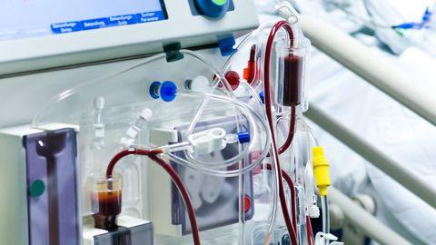 Dialüüs. Dialüüsil peab patsient käima 3-4 korda nädalas korraga 4 tundi.