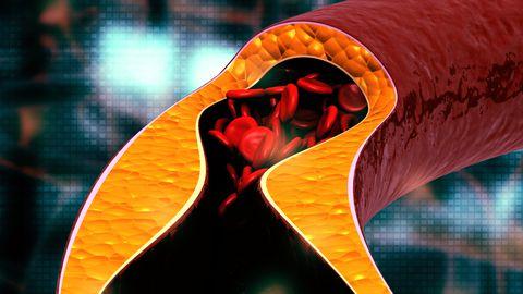 Covid-19 toob kaasa vere hüübimishäired.