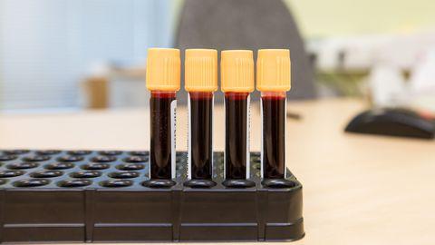 Autismi loodetakse diagnoosida verest.