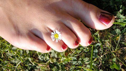 Ligi hiiliv artriit võib panna varbad naksuma ja raksuma.