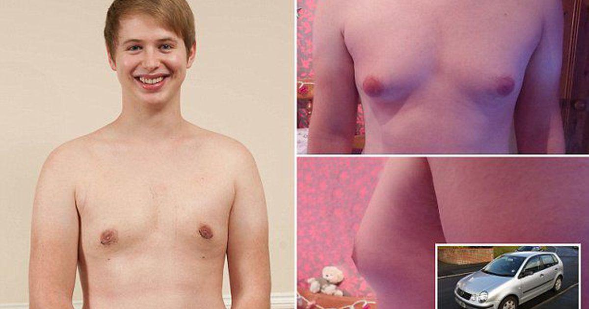 женская груди у мальчиков