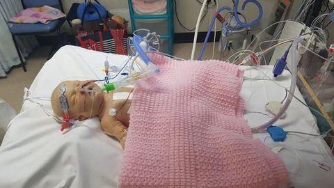 Pooliku südamega sündinud Lacey-Janet Suttor Parki haiglavoodis pärast esimest lahtist südameoperatsiooni.